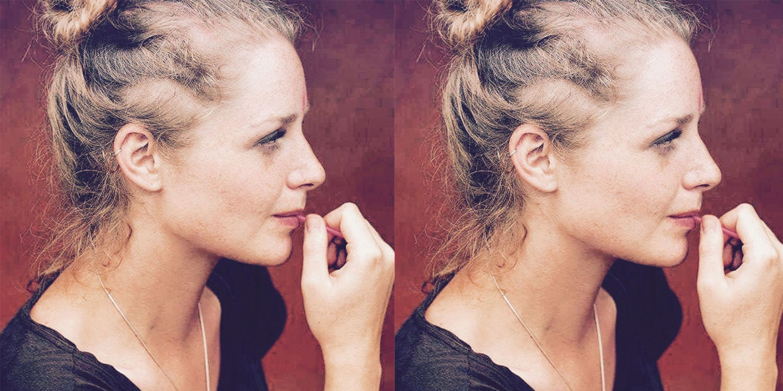 Women Talk About Female Hair Loss What Hair Loss In