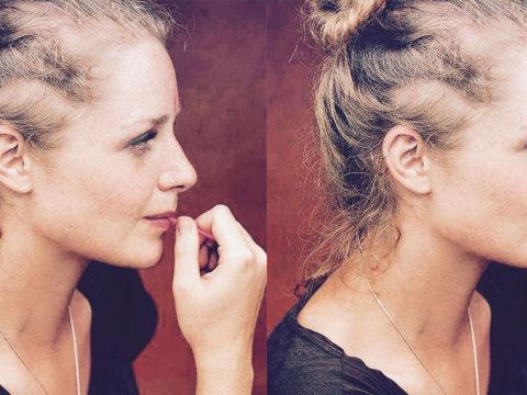 5 Female Celebrities who've Experienced Hair Loss   NewU